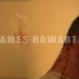 A man pulls at his head in hospital and blood comes out. - Actor Stock Footage